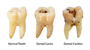 difference in cavities, decay, and caries