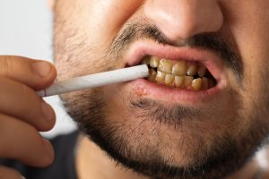 A man with bad teeth and herpes on his lip holds a cigarette near his mouth, which is much whiter than his teeth