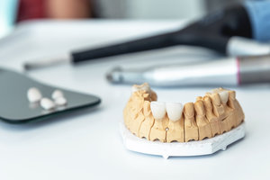 manufacture of veneers, dental implants and crowns in the dental laboratory.